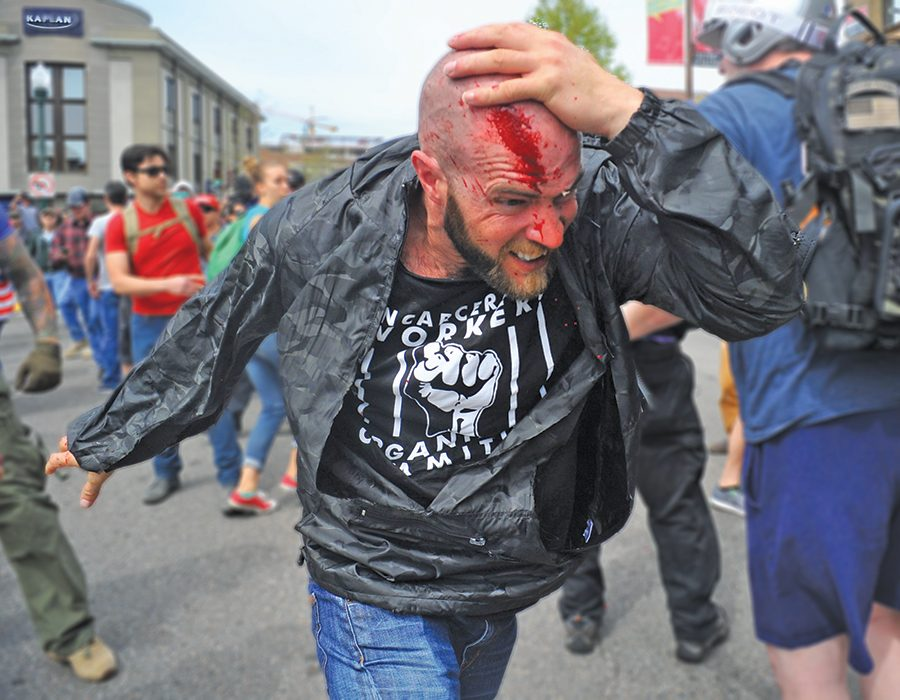 Anti-Trump protester Cole, who refused to give his last name or city of residence, holds his bleeding head as he runs away from a fight that broke out in the crowd during a pro-Trump rally in Berkeley, California on Saturday, April 15, 2017. The